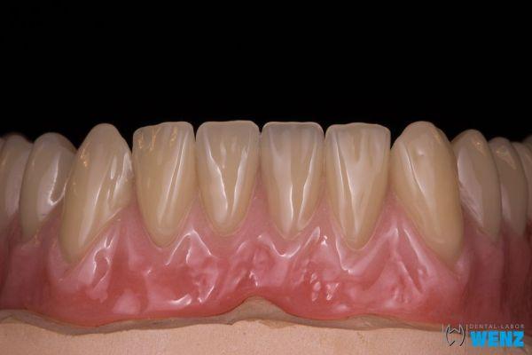 dentalllabor-wenzoliver-wenz-14DBDFF8DD-367C-5D10-B3F5-52C7814A2260.jpg