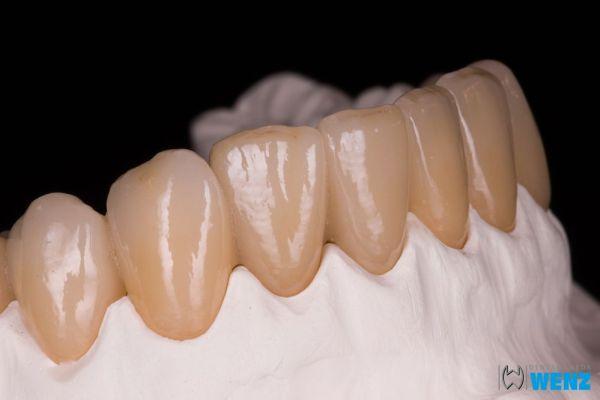 dentalllabor-wenzoliver-wenz-183A9D1E8E-C654-65A7-E2F5-9EB6D2FF3F8E.jpg