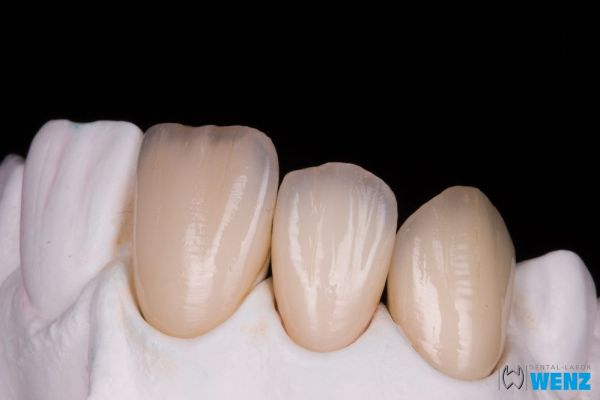 dentalllabor-wenzoliver-wenz-19A656F177-E55C-7C99-1919-8FD7DECE7137.jpg
