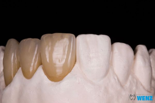 dentalllabor-wenzoliver-wenz-2158B6E132-679B-DC2A-0248-D95AA83876B7.jpg