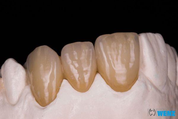 dentalllabor-wenzoliver-wenz-220F17B3D2-F0D3-575E-71EF-1586E0992E44.jpg
