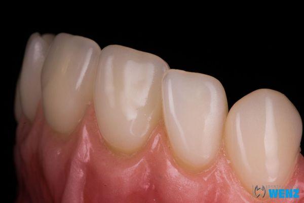 dentalllabor-wenzoliver-wenz-2325957843-C554-E841-4159-6666D35B5A5C.jpg