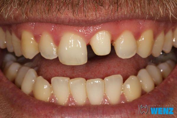 dentalllabor-wenzoliver-wenz-2D9CFC684-D3D2-43AE-6758-0BDD7664433E.jpg