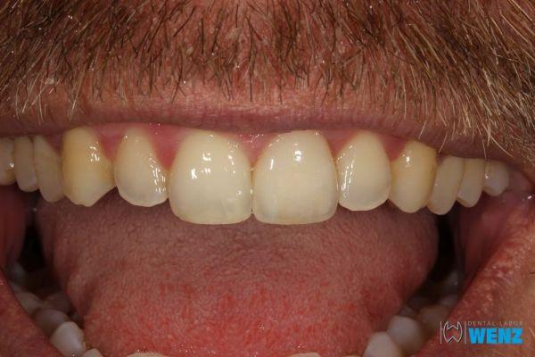 dentalllabor-wenzoliver-wenz-37297CAD5-3360-9061-28D9-F3A13AA697A1.jpg