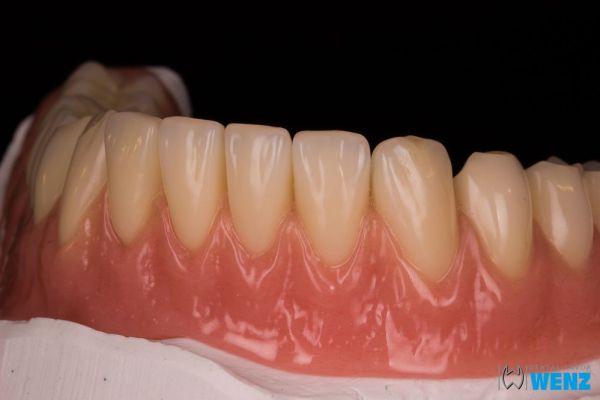 dentalllabor-wenzoliver-wenz-9973F28F6-16A7-E531-776B-346CD15D2CEB.jpg